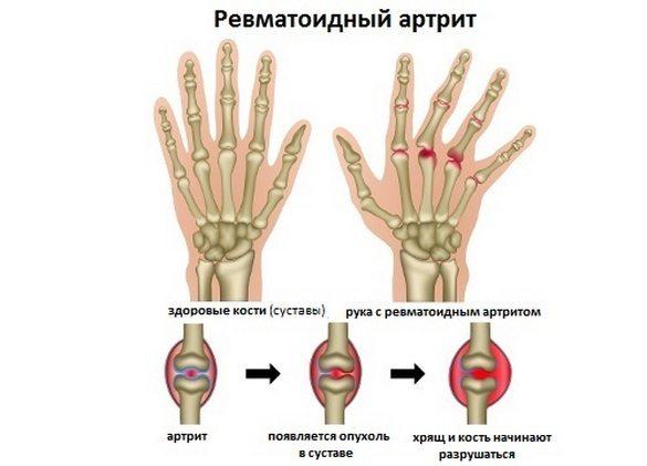 Лечение ревматоидного артрита длительное и комплексное, включающее курсы приема нестероидных противовоспалительных средств, гормональных препаратов