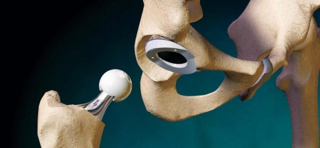 Во время процедуры осуществляется замена суставов, которые деформированы, на протезы