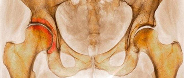 Двухсторонний коксартроз поражает одновременно два сустава, именно в этом и состоит осложнение болезни
