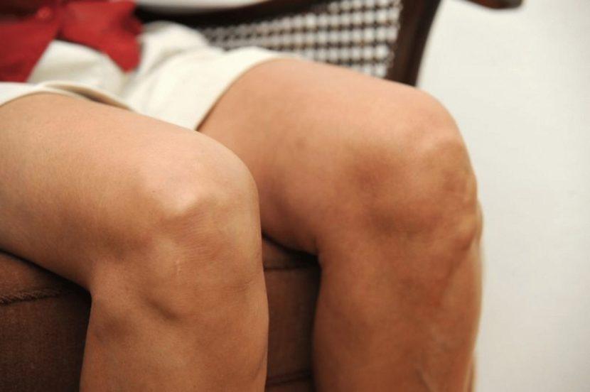 Гонартроз 1 степени коленного сустава: симптомы, причины, методы лечения