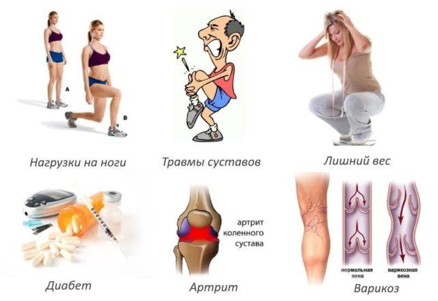 Поднятие тяжестей, профессиональная деятельность, связанная с постоянной нагрузкой на колени – распространённые причины патологии