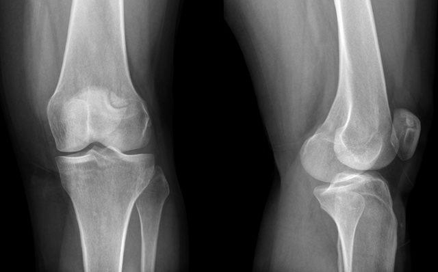 Рентгенологические признаки гонартроза коленного сустава