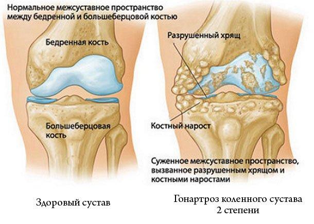 Эта болезнь имеет три стадии развития, но самой распространённой считается гонартроз коленного сустава 2 степени, так как именно при её наличии люди обращаются к врачам
