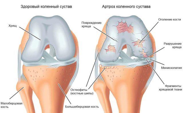 Гонартроз в зоне коленного сустава 3 степени – запущенная стадия патологии