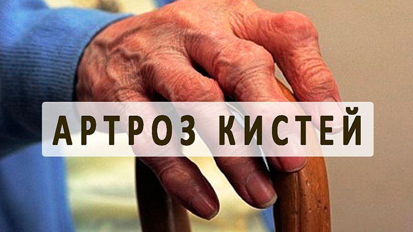 Артроз большого пальца руки причины симптоматика лечение