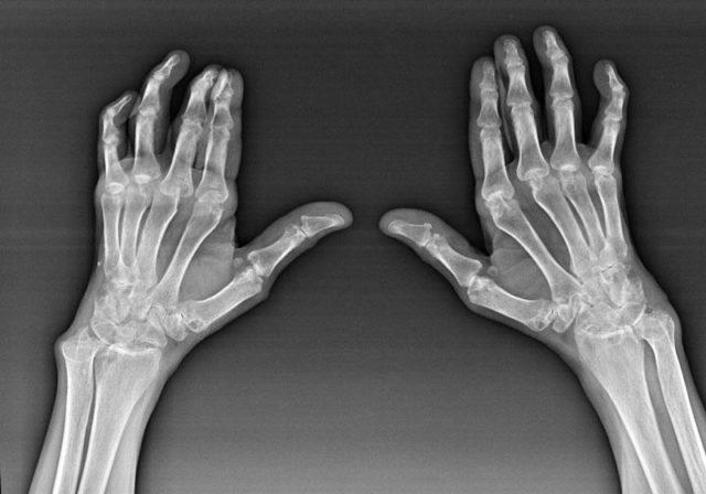 При расспросе больного артрозом суставов кисти и пальцев руки следует обратить внимание на следующие важные моменты: медленное появление и прогрессирование интенсивности болей