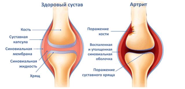 Во время воспаления синовиальная оболочка заполняется клетками воспалительного инфильтрата и утолщается