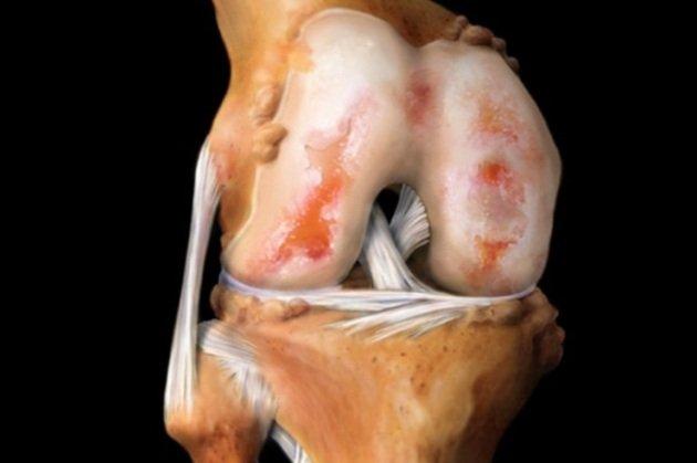 Самым распространенным вариантом этого заболевания является остеоартроз коленных суставов