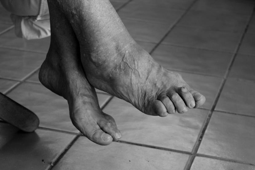 Деформирующий артроз стопы: лечение мелких суставов ног. Профилактика и питание. – лечение