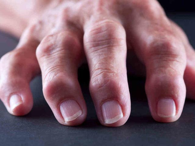 Залогом успешного лечения ревматоидного артрита считается соблюдение периодичности при приеме лекарства