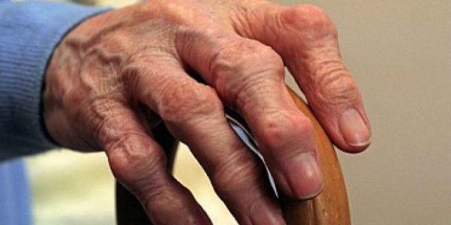 Сам по себе остеоартроз является заболеванием мультифакториальным, однако в качестве основных причин, выделяемых в природе развития этого заболевания, обозначают обычно три их варианта