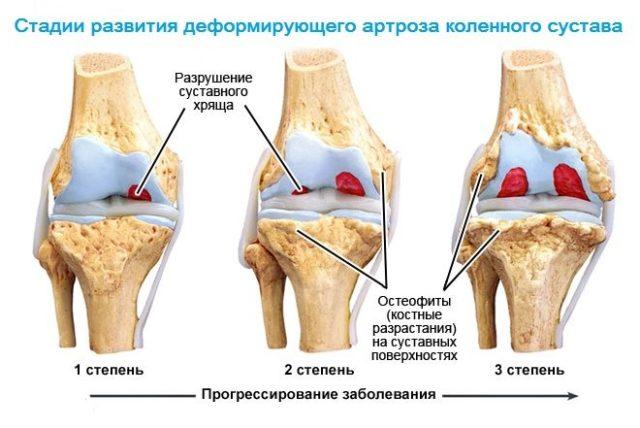 Первая степень остеоартроза. В этой степени заболевание сопровождается незначительными проявлениями болезненности, боль появляется «точечно»