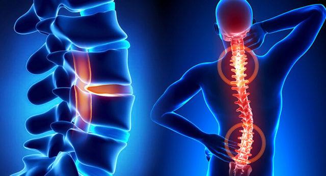 Хрящи теряют упругость, перестают быть эластичными, возникает ограничение двигательной активности, начинаются болевые ощущения