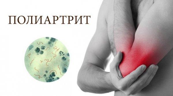 По неизвестным причинам на фоне псориаза развивается псориатический полиартрит