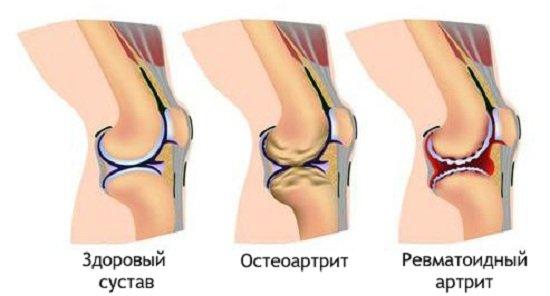 Явления острого полиартрита полностью обратимы; при хронических полиартритах в суставах развиваются необратимые патологические изменения