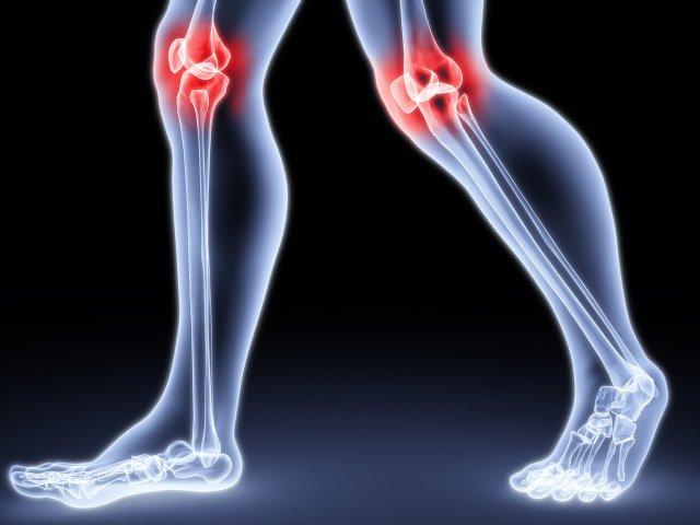 Артрит – воспаление сустава, имеющее три формы: острую, подострую и хроническую