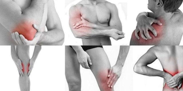 К дополнительным проявлениям заболевания относится появление уплотнений на отдельных участках кожи