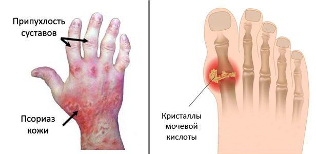 Суставы могут воспаляться при желудочно-кишечных заболеваниях, например, шигеллезах