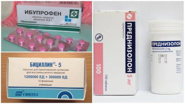 Лечение предполагает применение противомикробных препаратов, глюкокортикоидов, НПВС, цитостатиков