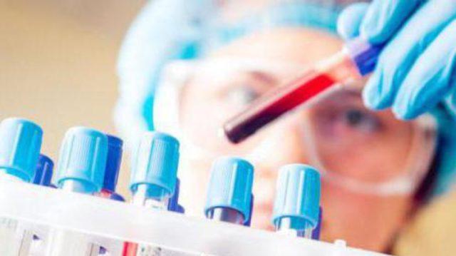 Общий анализ мочи и крови. Он должен показать повышенную скорость оседания эритроцитов, а также чрезмерное количество лейкоцитов