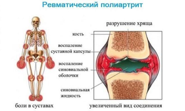 Проявляется оно в постепенном разрушении суставов