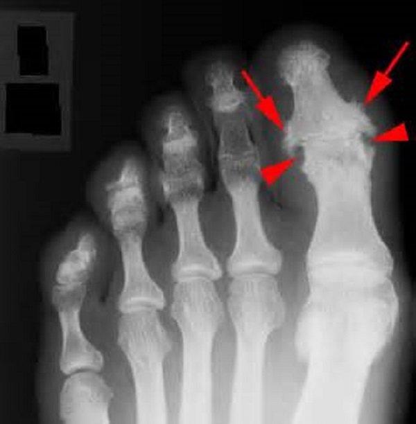 Общая клиническая картина свидетельствует в конечном счете о том, что нарушения в суставах обратимы и хорошо поддаются лечению