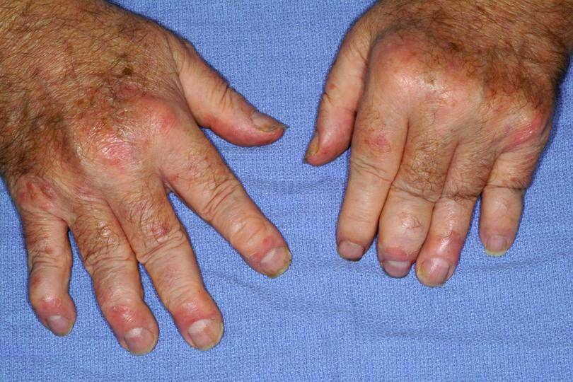 Ревматоидный полиартрит: симптомы и лечение