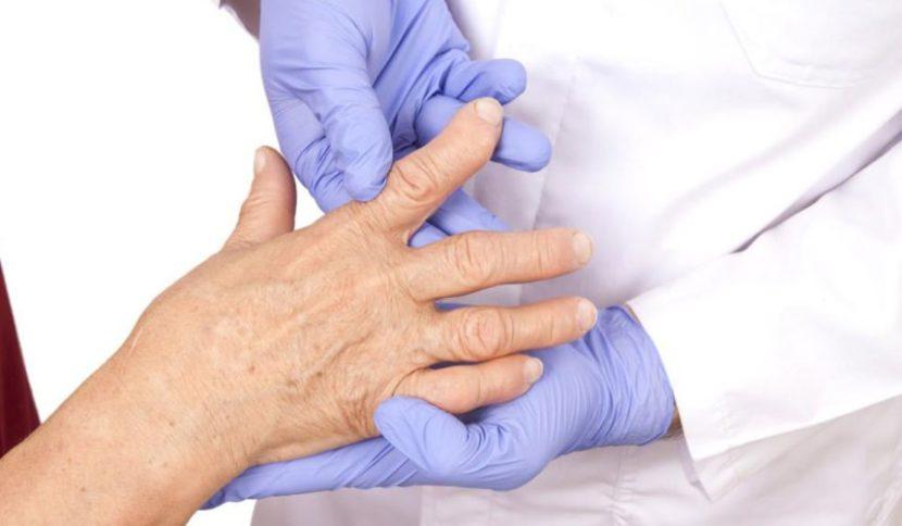 Ревматоидный артрит народные средства отзывы