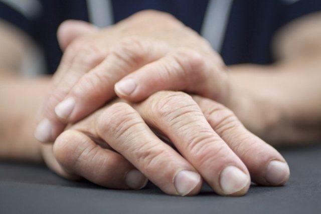 Если суставы поражаются на одной руке, аналогичная картина наблюдается на второй кисти