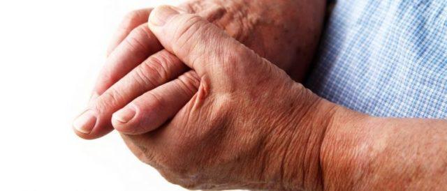 Недуг быстро прогрессирует, человек может потерять работоспособность обеих рук