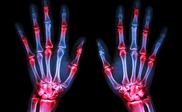Возникает отёк, болевой синдром, значительно снижается двигательная активность всех пальцев рук