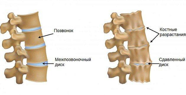 Утрата смягчающей прокладки приводит к увеличению трения между позвонками, воспалению прилежащих тканей и деформации костей