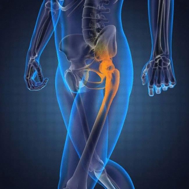 Обязательным компонентом терапии является лечебная гимнастика – самая простая и естественная методика избавления от суставных болезней