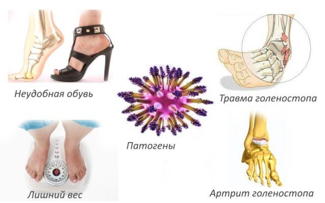 Вследствие ахиллобурсита происходит потеря функциональности голеностопного сустава
