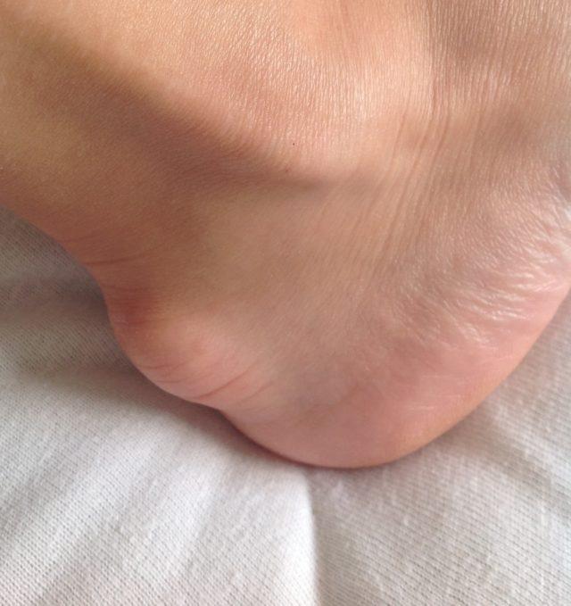 У мужчин часто из-за жесткого покроя или физических нагрузок на сухожилия во время занятия спортом