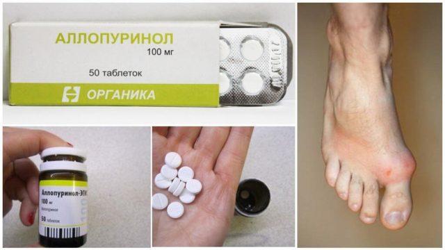 При лечении подагры аллопуринолом необходимо начинать с малых доз препарата