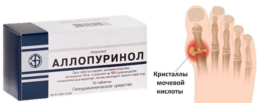 Лекарство Аллопуринол при подагре: как принимать, аналоги и отзывы, дозировка