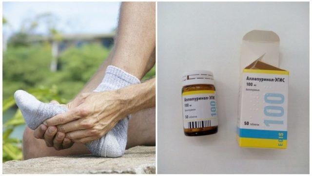 Аллопуринол при подагре является наиболее действенным и эффективным средством, которое восстанавливает метаболические процессы и снижает риск развития осложнений