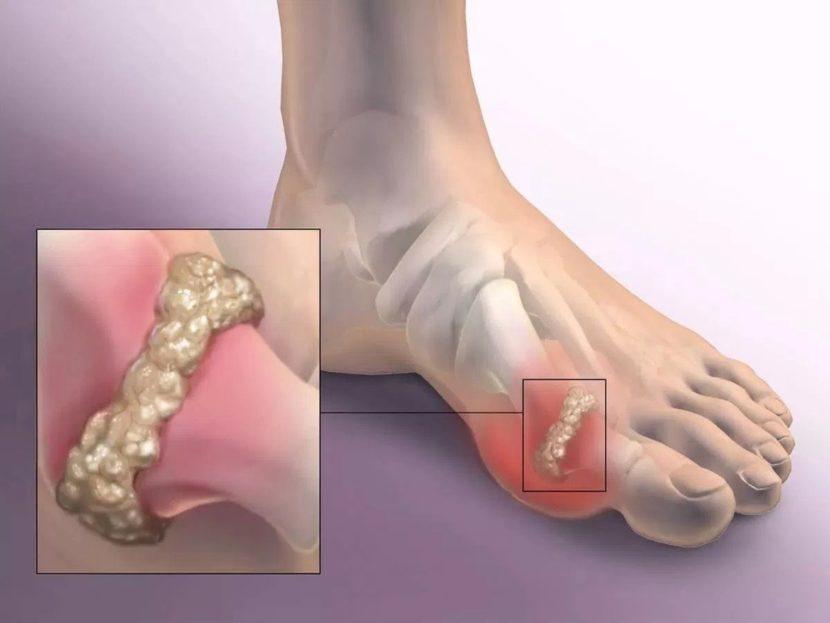 Артрит фаланговых суставов лечение -