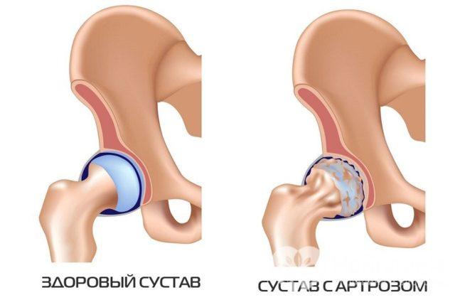 Другое название болезни – коксартроз