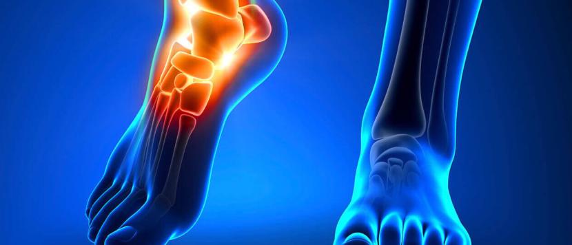 Характеристика и методы лечения бурсита голеностопного сустава