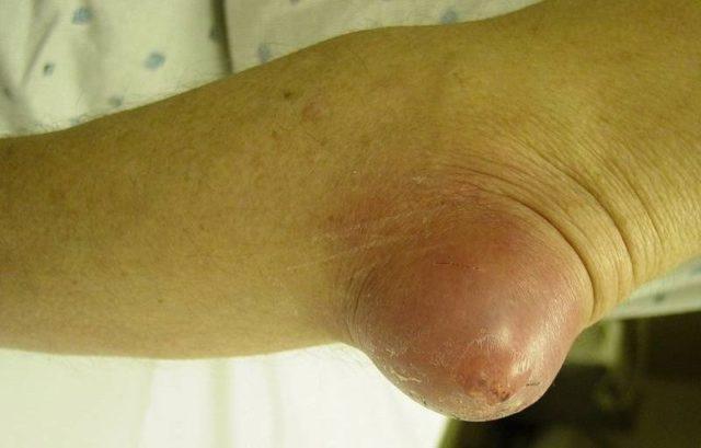 Если воспаление характеризуется серозным форматом течения болезни, сустав опухнет и повысится температура