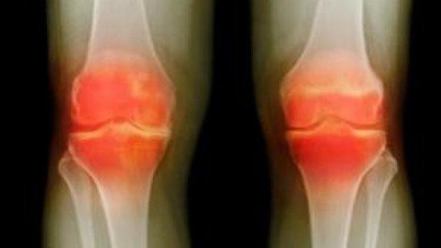 Деформированные суставы будут воспаляться, что усилит дегенеративные изменения