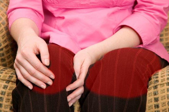При двустороннем гонартрозе 2 степени слышно похрустывание сустава при движениях