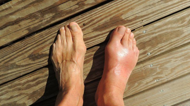 Врач по лечению суставов как называется Сайт о лечении заболеваний суставов