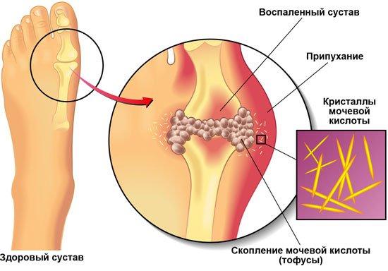 Какой врач лечит подагру на ногах