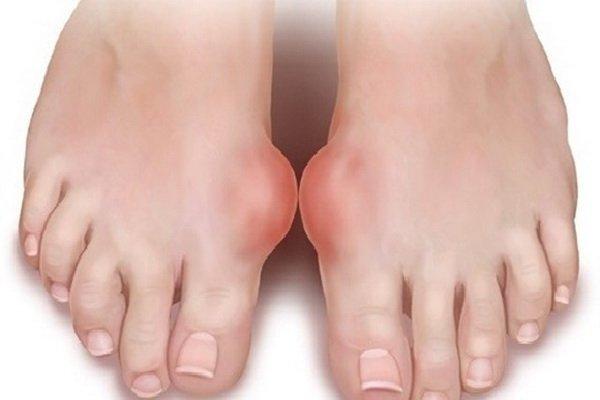 Раны и воспаления на коже — противопоказания к применению содовых процедур