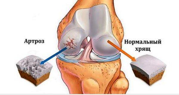 Артроз коленного сустава (гонартроз) — преждевременное изнашивание, изменение хрящевой ткани, ведущее к ее дальнейшему разрушению и сопровождаемое болями различной степени