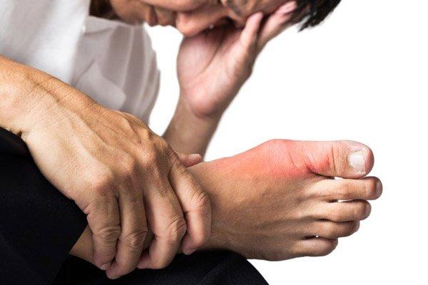 При длительном течении подагры вокруг суставов могут образовываться тофусы, содержащие соли мочевой кислоты
