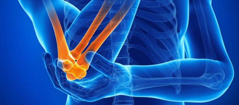 Причины симптомы и лечение остеоартроза локтевого сустава
